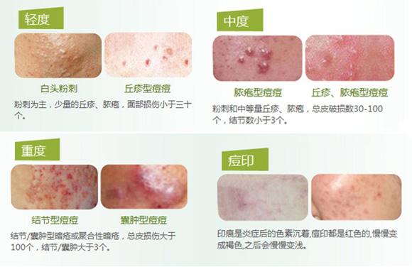 皮肤结构图痘痘