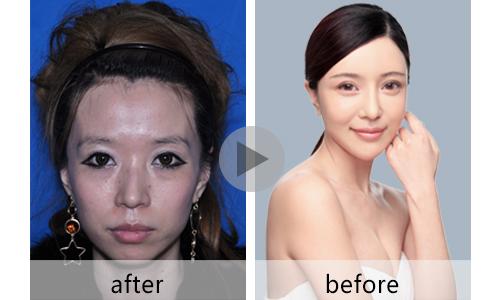 整容脸部改造设计图